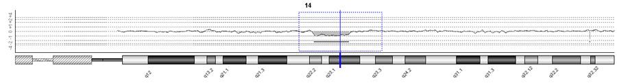 ARRAY o Cariotipo Molecular-2