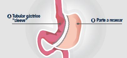 Sleeve-gastrico