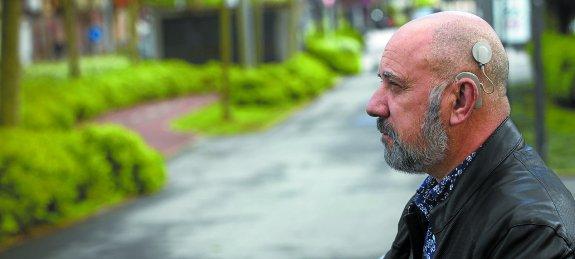 Al irunés Ángel Veiga le colocaron un implante coclear en febrero. Una meningitis le dejó prácticamente sordo hace cinco años. / DE LA HERA