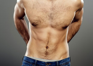 Abdominoplastia-hombre